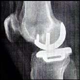 Knee T